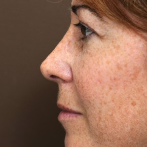 After Photo - Nose Surgery - Case #3946 - Primary Rhinoplasty - Lateral View