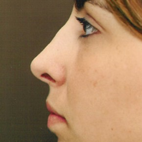 After Photo - Nose Surgery - Case #3947 - Primary Rhinoplasty - Lateral View