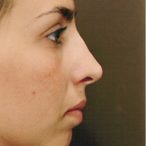 After Photo - Nose Surgery - Case #3947 - Primary Rhinoplasty - Posterior Oblique View