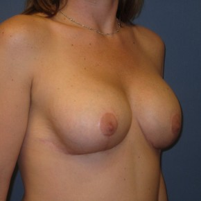 Before Photo - Breast Revision - Case #3963 - Oblique View