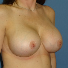 After Photo - Breast Revision - Case #3963 - Oblique View