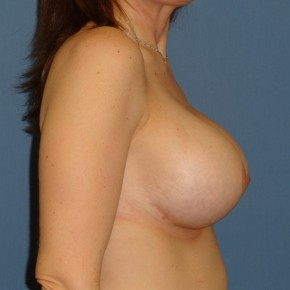 After Photo - Breast Revision - Case #3963 - Lateral View