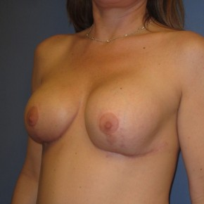 Before Photo - Breast Revision - Case #3963 - Posterior Oblique View