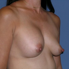 Before Photo - Breast Revision - Case #3964 - Oblique View
