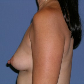 Before Photo - Breast Revision - Case #3964 - Lateral View