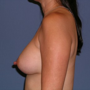 After Photo - Breast Revision - Case #3964 - Lateral View