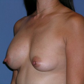 Before Photo - Breast Revision - Case #3964 - Posterior Oblique View