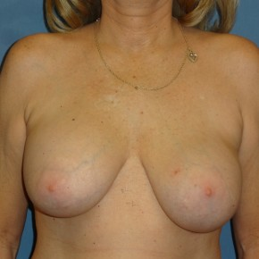 Before Photo - Breast Revision - Case #3965 - Frontal View