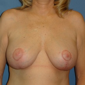 After Photo - Breast Revision - Case #3965 - Frontal View