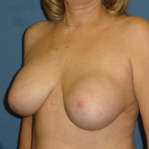Before Photo - Breast Revision - Case #3965 - Posterior Oblique View