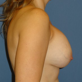 Before Photo - Breast Revision - Case #3966 - Lateral View