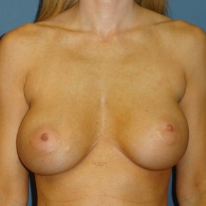 Before Photo - Breast Revision - Case #3967 - Frontal View