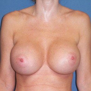 After Photo - Breast Revision - Case #3967 - Frontal View