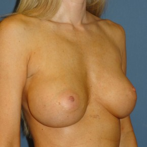 Before Photo - Breast Revision - Case #3967 - Oblique View