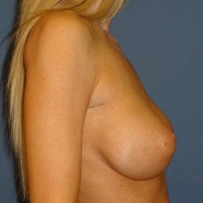 Before Photo - Breast Revision - Case #3967 - Lateral View