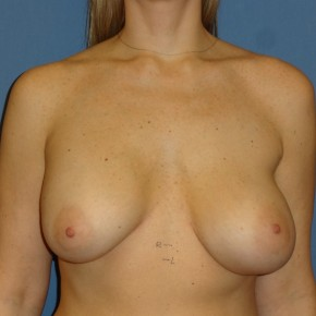 Before Photo - Breast Revision - Case #3968 - Frontal View