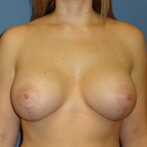 After Photo - Breast Revision - Case #3968 - Frontal View