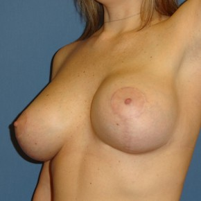 After Photo - Breast Revision - Case #3968 - Posterior Oblique View