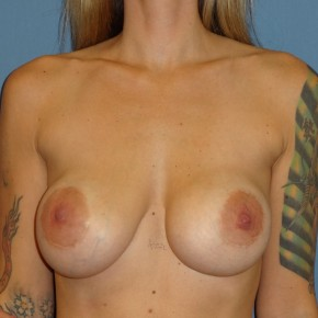 Before Photo - Breast Revision - Case #3969 - Frontal View