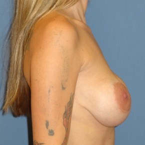 Before Photo - Breast Revision - Case #3969 - Lateral View