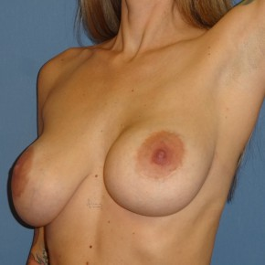 Before Photo - Breast Revision - Case #3969 - Posterior Oblique View