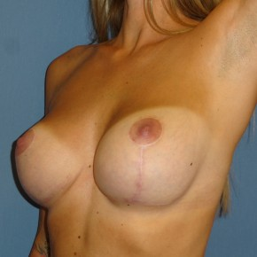 After Photo - Breast Revision - Case #3969 - Posterior Oblique View