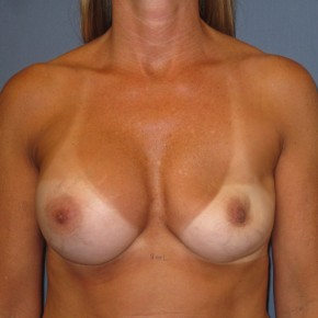 Before Photo - Breast Revision - Case #3970 - Frontal View