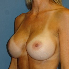 After Photo - Breast Revision - Case #3970 - Posterior Oblique View