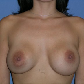 Before Photo - Breast Revision - Case #3971 - Frontal View