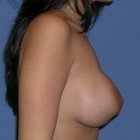 Before Photo - Breast Revision - Case #3971 - Lateral View