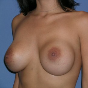 Before Photo - Breast Revision - Case #3971 - Posterior Oblique View