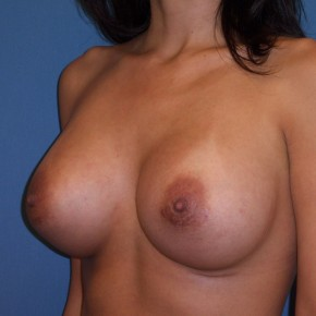 After Photo - Breast Revision - Case #3971 - Posterior Oblique View