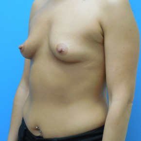 Before Photo - Breast Augmentation - Case #4053 - Oblique View
