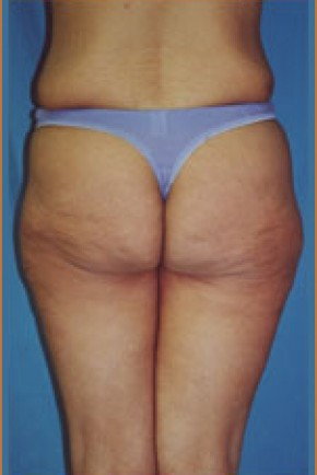 Before Photo - Lower Body Lift - Case #4056 - Posterior Oblique View
