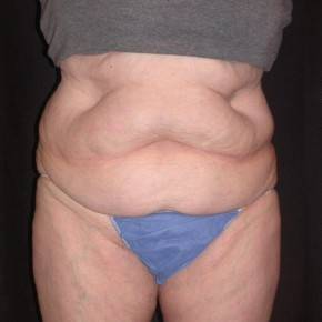 Before Photo - Nonsurgical Skin Tightening - Case #4065 - CoolSculpting - Frontal View
