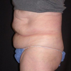 Before Photo - Nonsurgical Skin Tightening - Case #4065 - CoolSculpting - Posterior Oblique View