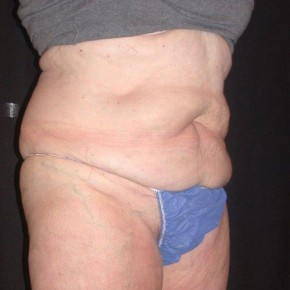 After Photo - Nonsurgical Skin Tightening - Case #4065 - CoolSculpting - Posterior View