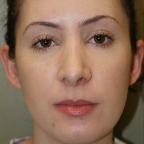 After Photo - Nose Surgery - Case #4162 - Open Septorhinoplasty - Frontal View