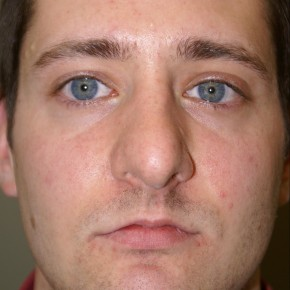 Before Photo - Nose Surgery - Case #4170 - Open Structure Septorhinoplasty and Sub-Mucous Resection - Frontal View