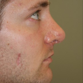 After Photo - Nose Surgery - Case #4170 - Open Structure Septorhinoplasty and Sub-Mucous Resection - Oblique View