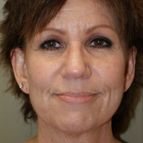 Before Photo - Facelift - Case #4171 - Frontal View