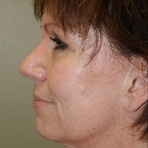 Before Photo - Facelift - Case #4171 - Lateral View