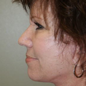 After Photo - Facelift - Case #4171 - Lateral View