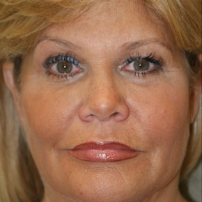 Before Photo - Facelift - Case #4174 - Frontal View