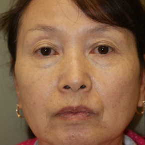 Before Photo - Facelift - Case #4178 - Frontal View