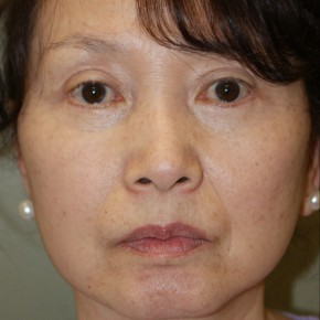 After Photo - Facelift - Case #4178 - Frontal View