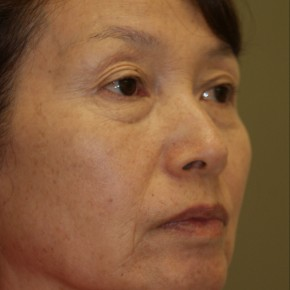 Before Photo - Facelift - Case #4178 - Oblique View