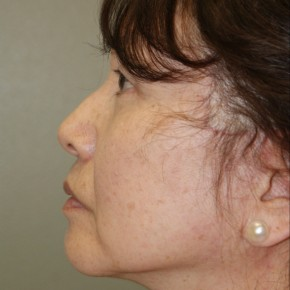After Photo - Facelift - Case #4178 - Lateral View