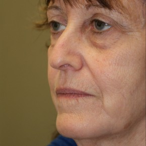 Before Photo - Facelift - Case #4179 - Oblique View