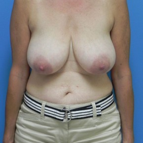 Before Photo - Breast Reduction - Case #4188 - Bilateral Breast Reduction - Frontal View